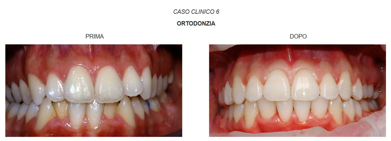 ortodonzia-caso